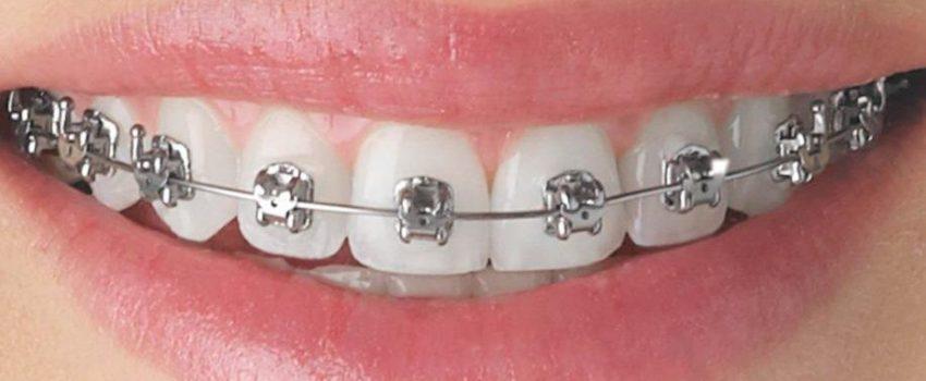 Orthodontic Treatment Charlotte Nc